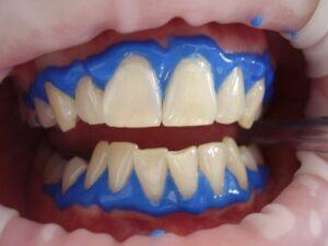Relax Dental Center fogászati központ